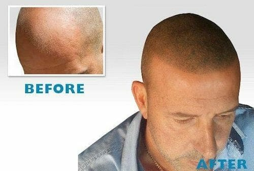 Hilton Hair Aesthetics: Scalp Micropigmentation For All Stages of Hair Loss and Thinning