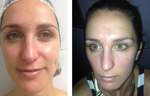 My face before and after the Enzyme Treatment.