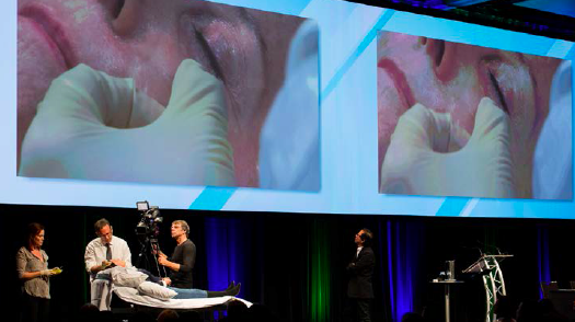 Dr Dayan injecting during a live demo