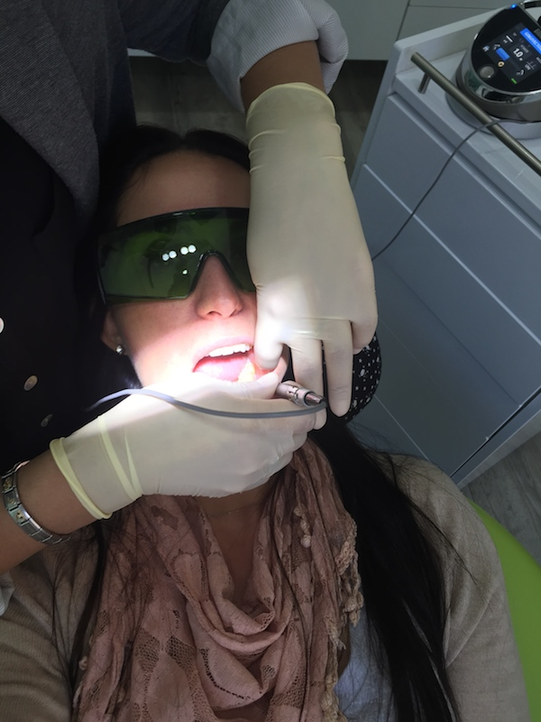 Laser treatment for tooth sensitivity