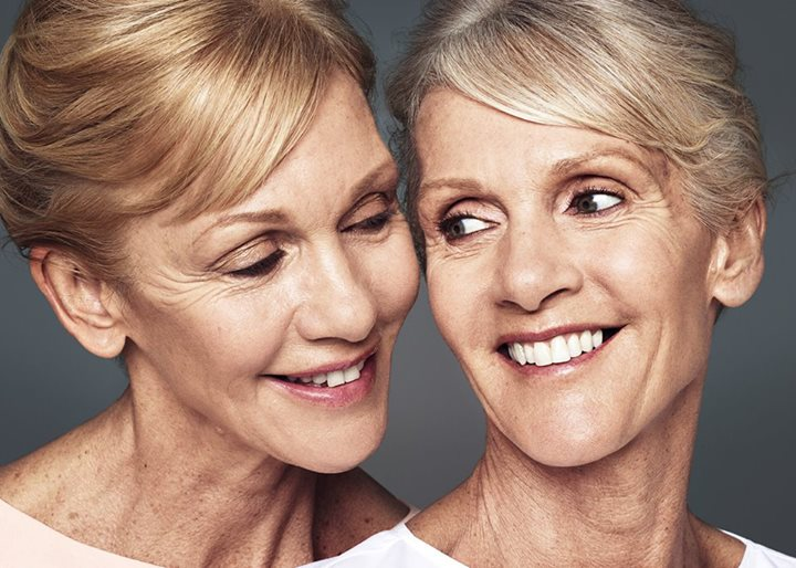 """I feel younger and more confident"" – Gay, 63 10 sets of identical twins proved the natural-looking results of Restylane fillers and Restylane Skinboosters in real life. Read about our twins experiences and see the results for yourself! ProofIRL.com #ProofIRL"