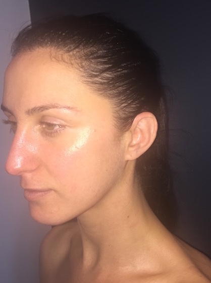 Glowy skin afterward - hooray! How about that Jewish nose though. Oy vey.