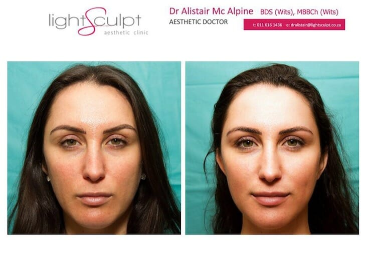Review by A2: Dermal Fillers For The Face