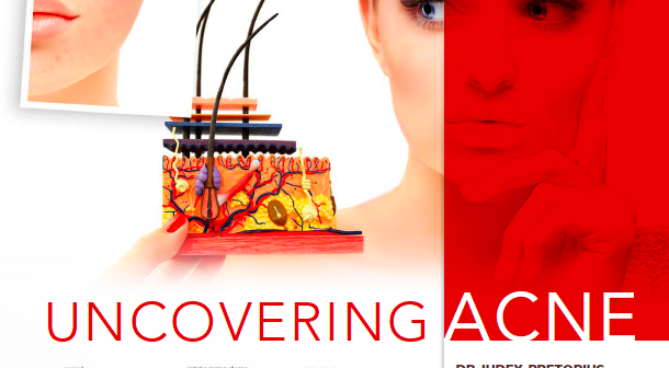 Biomedical Emporium: Uncovering Acne