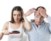 Treating Hair Loss With Micro-Needling and mesoestetic®